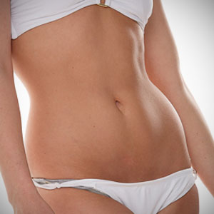 abdominoplasty wish